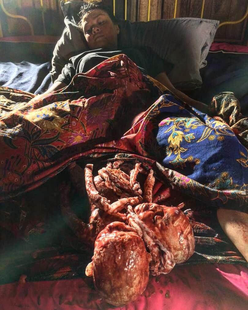 Nampak Real, Rupanya Kesan Darah Aina Abdul AJL34 Hasil Tangan Wanita Sarawak Ini