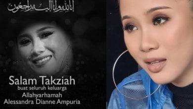 Photo of Artis Muda Sabah, Sandra Dianne Meninggal Dunia Setelah Koma 5 Hari